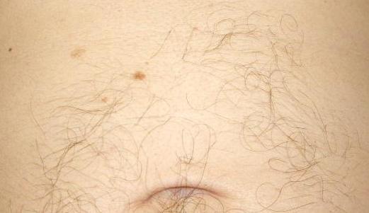 asymmetric abdominal hair