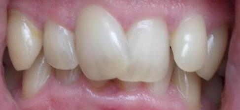 incisor crowded