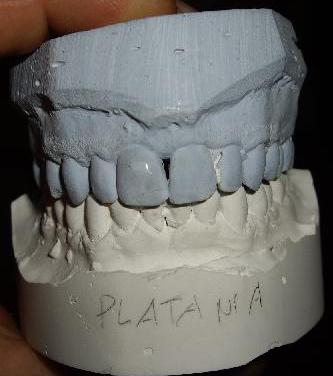 planas on mandibular arch after