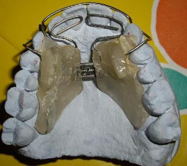 planas on maxillary arch after