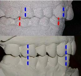 mandible retrusion pre/post planas