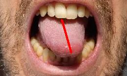 deviated tongue